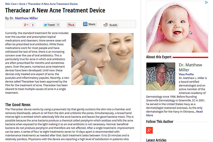 Theraclear-A-New-Acne-Treatment-Device1
